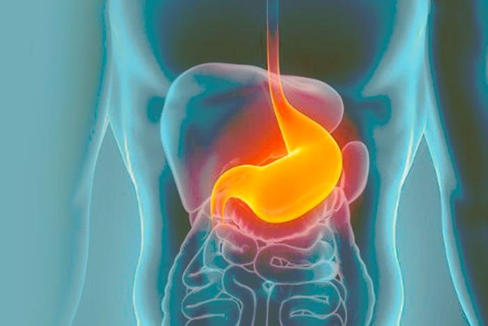 Radiografia de un estomago