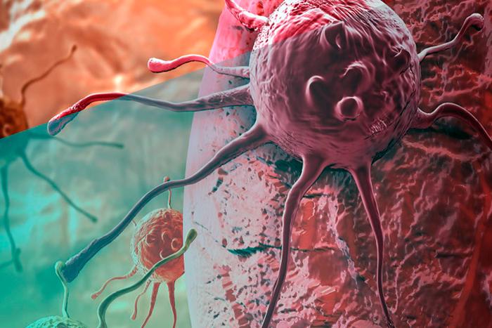En una foto a color se ve una ampliación de células cancerígenas