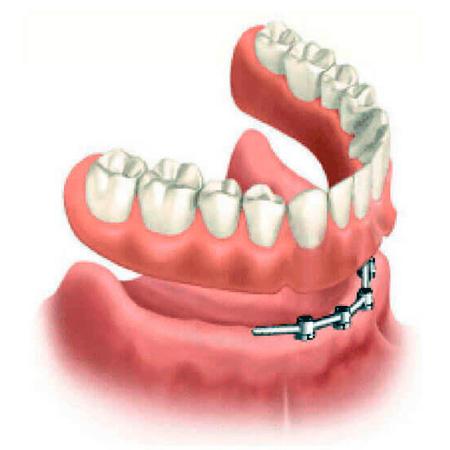 Intensivo de Prótesis sobre implantes